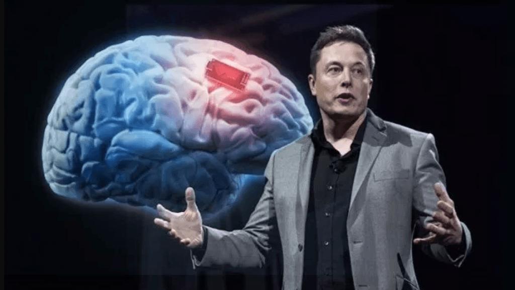 Elon Neurolink